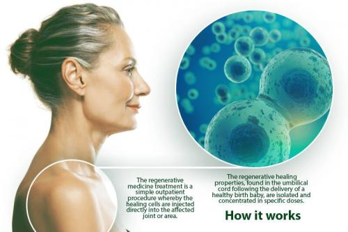How Stem Cell Therapy Works Mount Pleasant